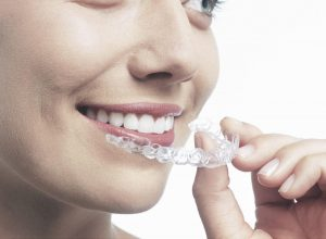 invisalign clear braces in new forest southampton hampshire