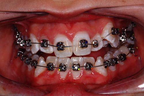 teeth straightening braces totton