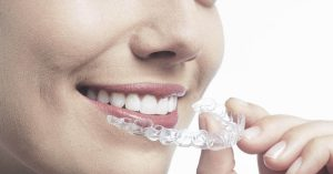 Invisalign Southampton teeth straightening at Bridgeways Dental