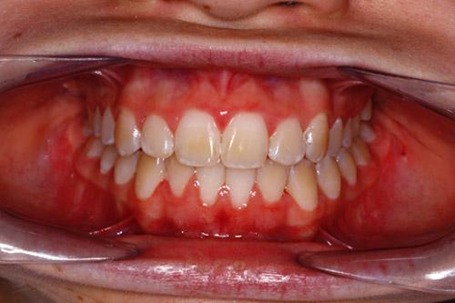 teeth straightening in totton