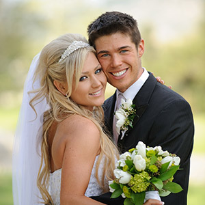 wedding smile makeover in hampshire