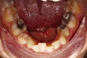 braces southampton case study