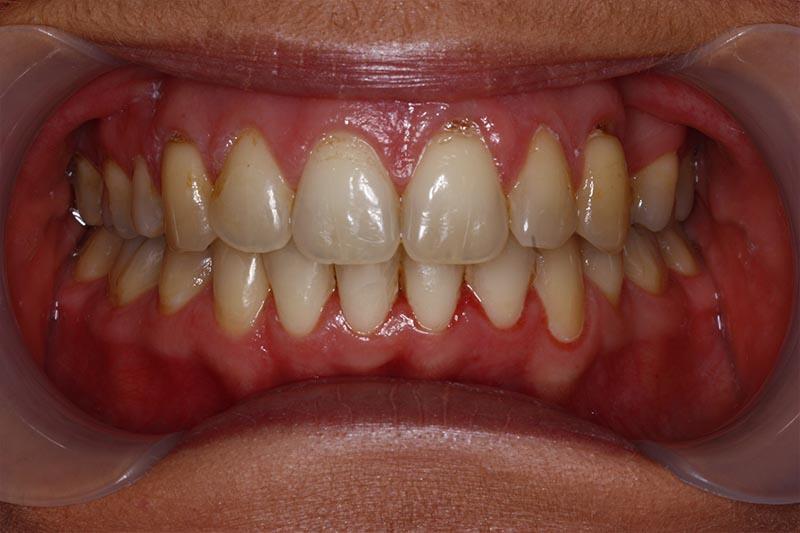 orthodontic testimonial in southampton