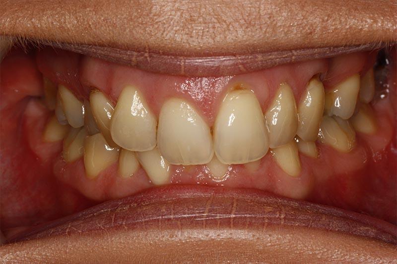 southampton braces patient review