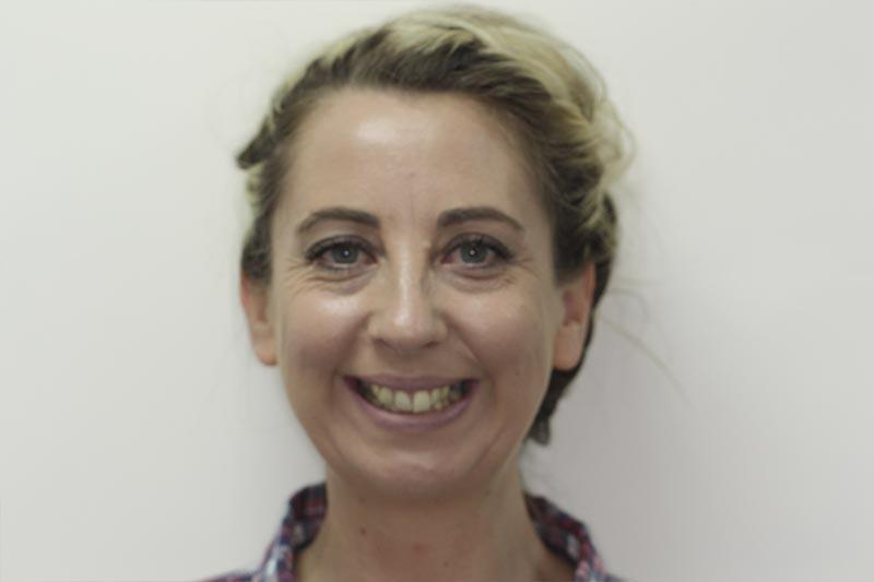 southampton teeth straightening review