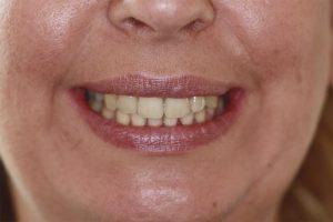 teeth straightening southampton testimonials