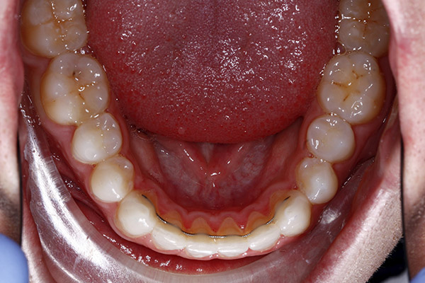 invisalign braces in southampton results
