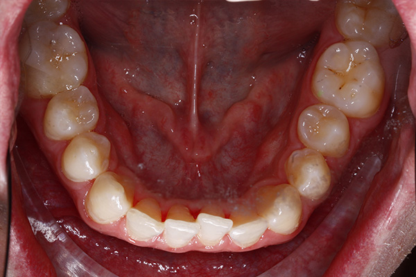 invisalign clear aligners treatment in southampton