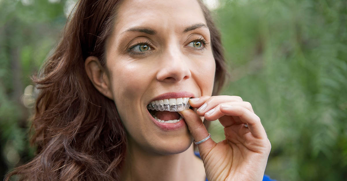 invisalign smile assessments in southampton