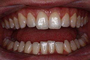 invisalign teeth straightening in southampton