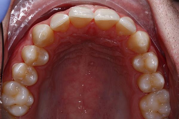 invisalignt teeth straightening results