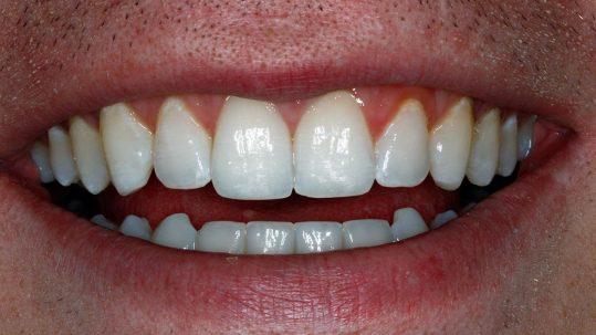 southampton invisalign teeth straightening