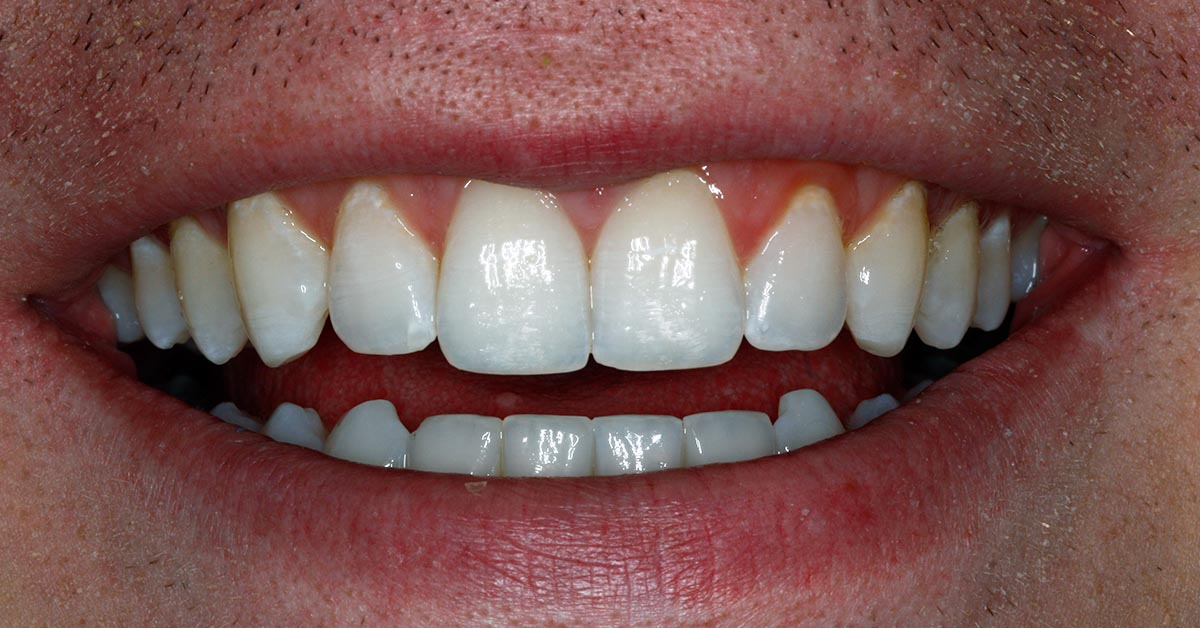 southampton invisalign teeth straightening