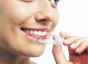 damon teeth straightening in southampton