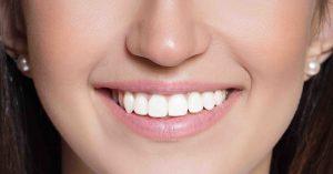 national smile month southampton