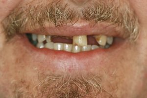 dental implant clinic hampshiredental implant clinic in hampshire