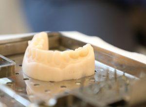 dental implants in hampshire southampton