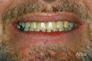 dental implants in southampton hampshire