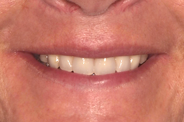After Implant Treatment